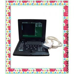 Palmsize Ultrasound Scanner-CE Certificate Manufactures