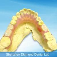China Hot sell Customized Flexible Partial valplast dental tooth on sale