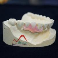 China Valplast And TCS Flexible Partial Denture on sale