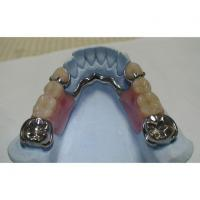 China COCR Partial Denture on sale