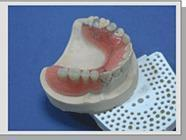 China Removable partial denture on sale