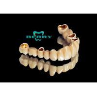 China Telescope Crowns Classic and long service life , Telescopic Dentures And Bridges on sale