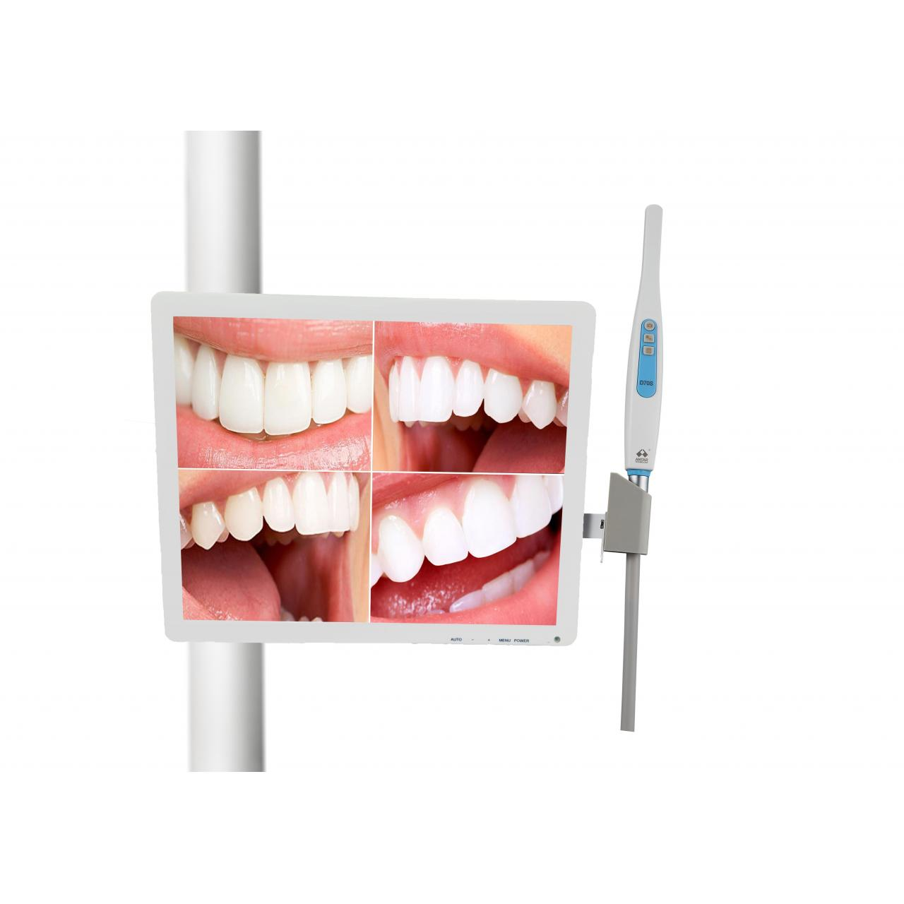 DENTAL ITEM Intraoral Camera with 17inch Multimedia LED Monitor